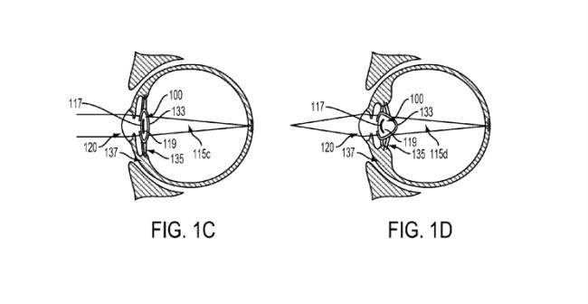google-intraocular-lens