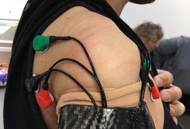 bionicka ruka elektrody